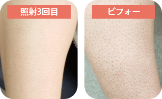 脚(膝下)脱毛(3回目)○○代 女性